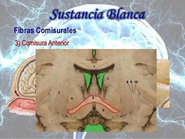 Cerebro anterior (seminario i de neuro) modif