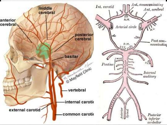 total anterior circulation infarct pdf