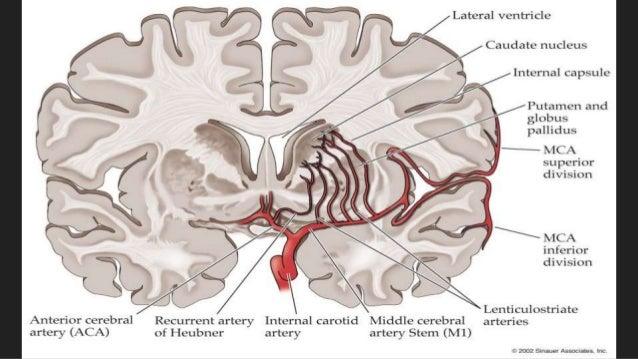 Enchanting Middle Cerebral Artery Anatomy Crest - Internal organs ...