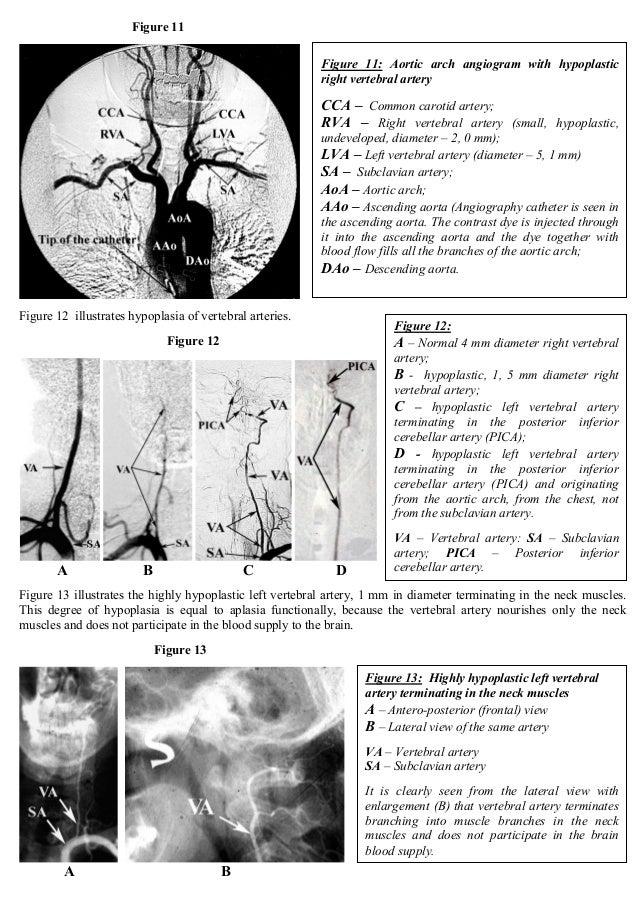 Cerebrovascular Disease Cerebrovascular Insufficiency Vertebrobasi