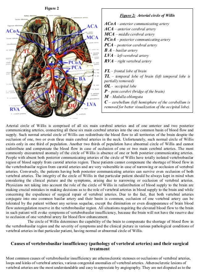 Cerebrovascular disease