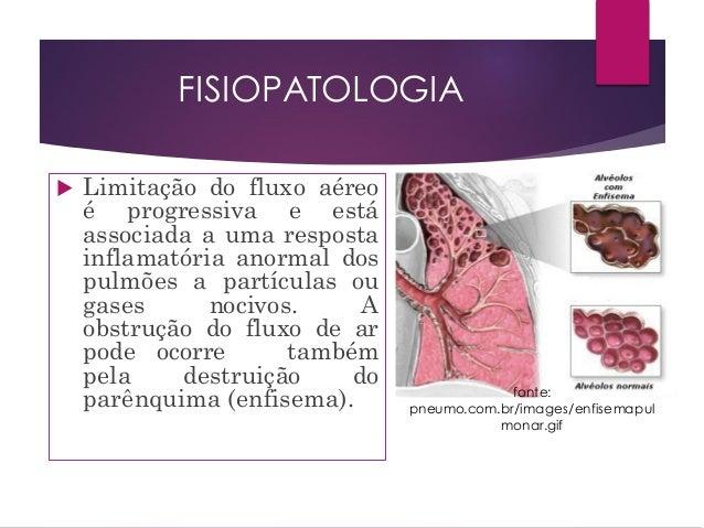 FISIOPATOLOGIA DO DPOC PDF DOWNLOAD