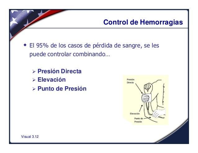 Visual 3.12Control de Hemorragiasw El 95% de los casos de pérdida de sangre, se lespuede controlar combinando…Ø Presión Di...