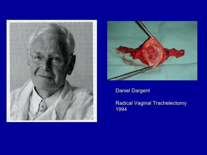 Daniel Dargent Radical Vaginal Trachelectomy 1994