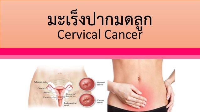 มะเร็งปากมดลูก Cervical Cancer