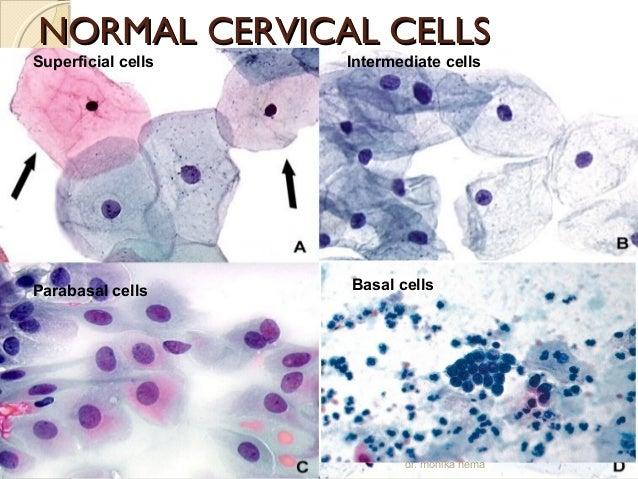 Cervical Cytopathology on Irregular Shapes