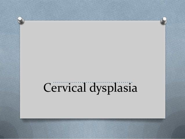 Cervical dysplasia …………………………………