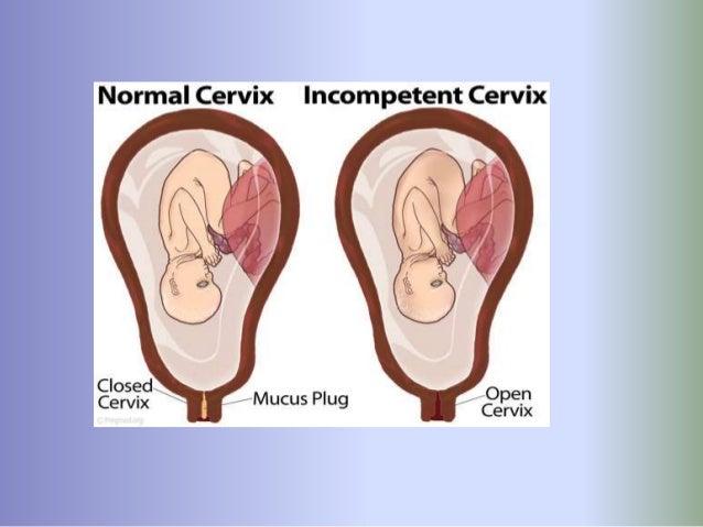 Cervical incompetence Slide 3