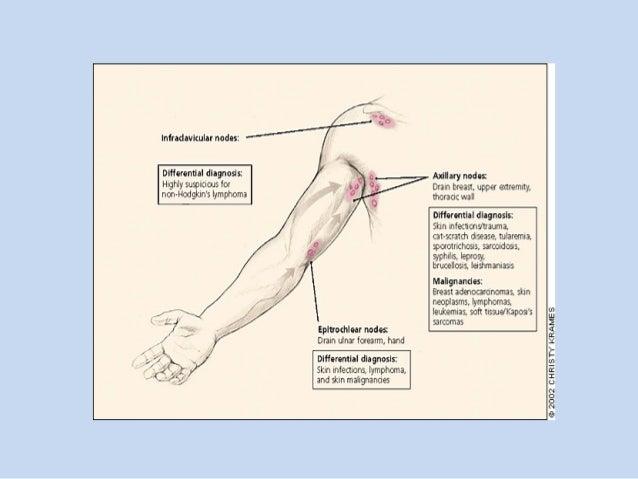 cervical lymphadenopathy, Cephalic Vein