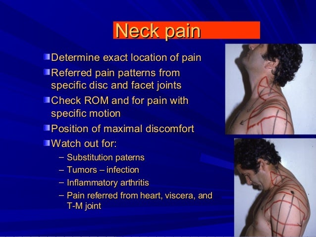 Neck arthritis diagnosis