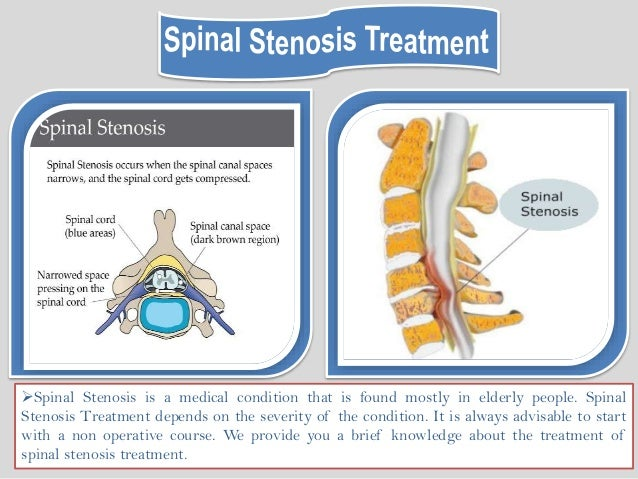 listhesis cervical spine