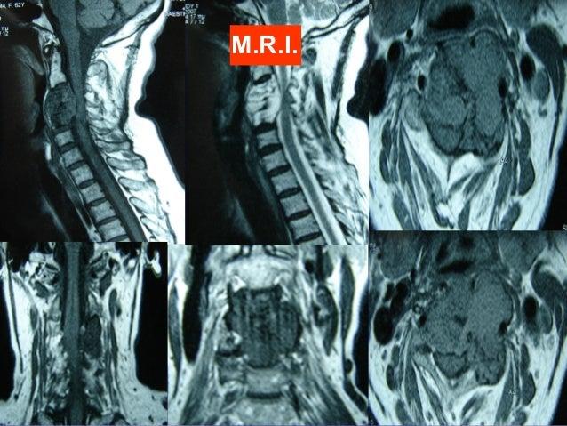 Malignant Cervical Spine Tumors Operative Treatment