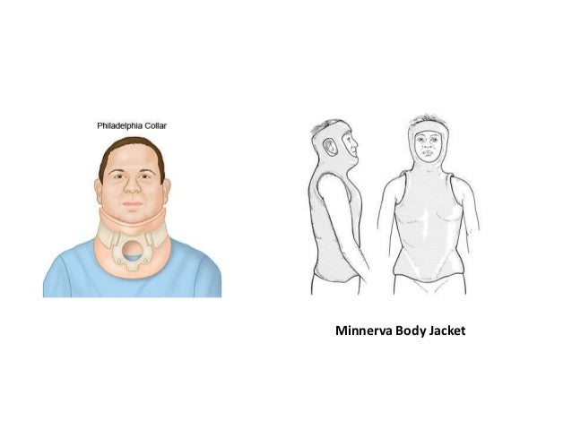 • Manual therapy, such as massage and mobilization may provide further relief for patients with cervical spondylosis. • Mo...