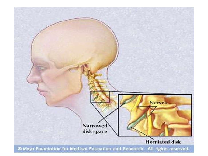 Clinical manifestation • Symptoms   – Neck pain: radiating to the ipsilateral upper     extremity   – Paresthesia   – Musc...