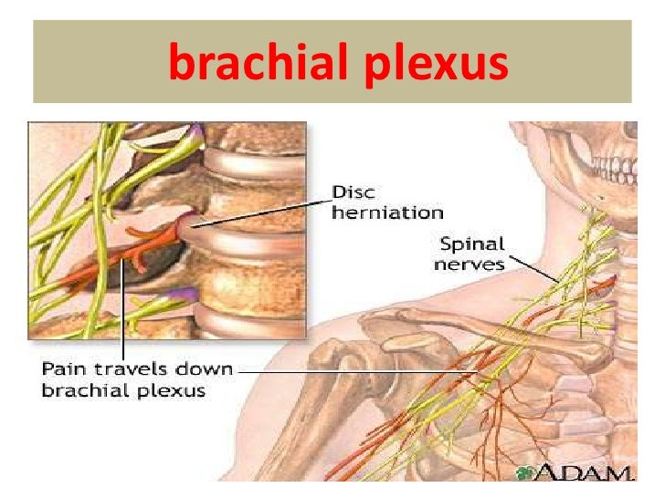 • Signs   –Stiffness of neck   –Tenderness, spasm of paraspinous    muscles   –Limitation of active and passive    motion ...