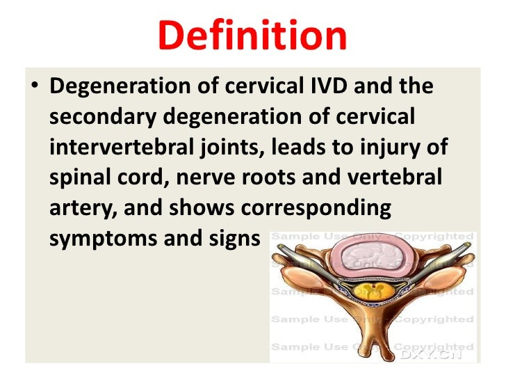 Definition • Degeneration of cervical IVD and the   secondary degeneration of cervical   intervertebral joints, leads to i...