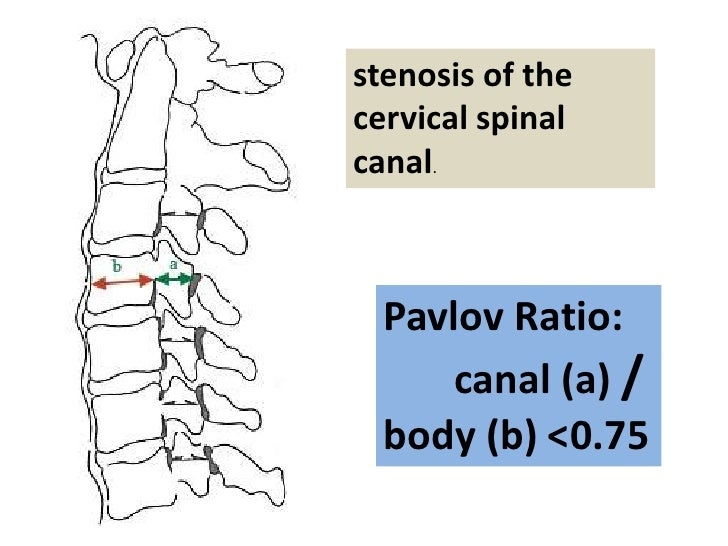stenosis of the cervical spinal canal.      Pavlov Ratio:      canal (a) /   body (b) <0.75