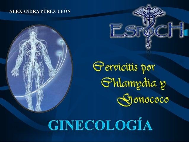 Cervicitis porChlamydia y Gonococo