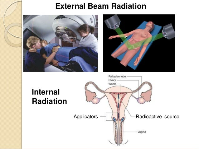 Radiation For Cervix Cancer