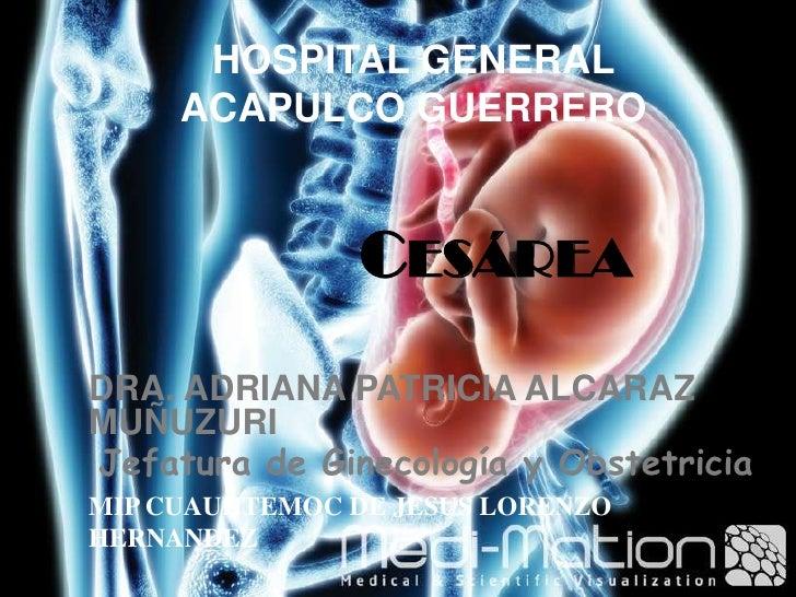 HOSPITAL GENERAL ACAPULCO GUERRERO<br />Cesárea<br />DRA. ADRIANA PATRICIA ALCARAZ MUÑUZURI<br />Jefatura de Ginecología y...