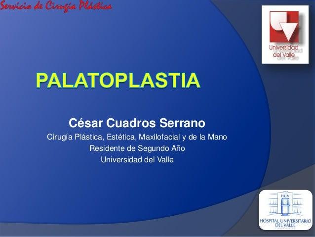 César Cuadros Serrano Cirugía Plástica, Estética, Maxilofacial y de la Mano Residente de Segundo Año Universidad del Valle