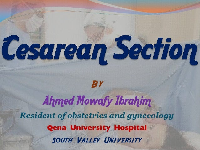 cesarean delivery vs vaginal delivery essay Learn about the changes you'll go through after pregnancy from the cleveland clinic  of vaginal discharge or  incision (cesarean delivery.