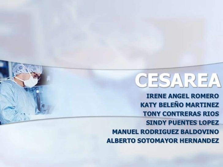 CESAREA<br />IRENE ANGEL ROMERO<br />KATY BELEÑO MARTINEZ<br />TONY CONTRERAS RIOS<br />SINDY PUENTES LOPEZ<br />MANUEL RO...