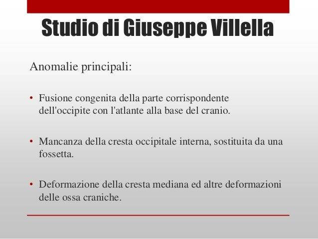 Studio di Giuseppe VillellaAnomalie principali:• Fusione congenita della parte corrispondente  delloccipite con latlante a...