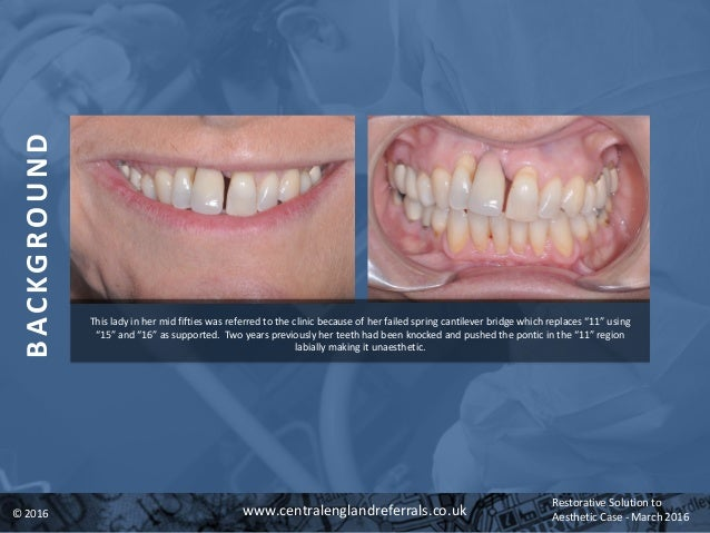 A Simple Restorative Solution To Difficult Aesthetic Case