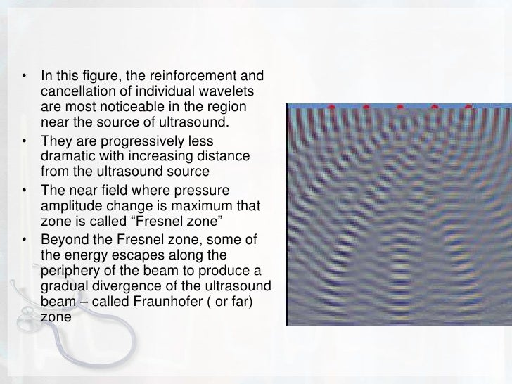 ULTRASOUND BEAMS<br />Ultrasound from a point source creates spherical wave fronts. Ultrasound from a two-dimensional exte...
