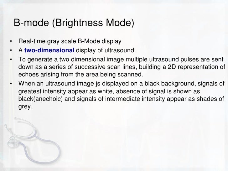 A-Mode (amplitude mode)<br />A mode display consists of a horizontal baseline. This baseline represents time and or distan...