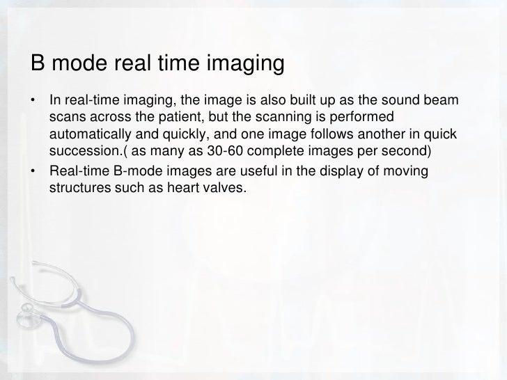 B-mode, or brightness mode, ultrasound display.<br />