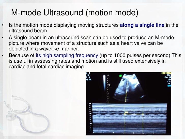 concepts of ultrasound physics This website is designed to introduce the ultrasound beginner to basic concepts in ultrasound physics and managing and manipulating a machine ultrasounds are sound waves with frequencies higher than the upper audible limit of human hearing.