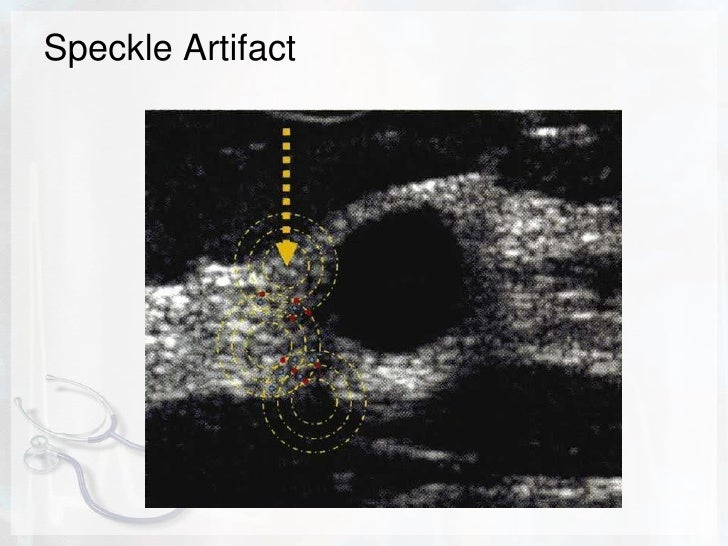 Multipath artifact<br />Echoes reflected (e.g. from diaphragm and wall of ovarian cyst) may create complex echo path that ...