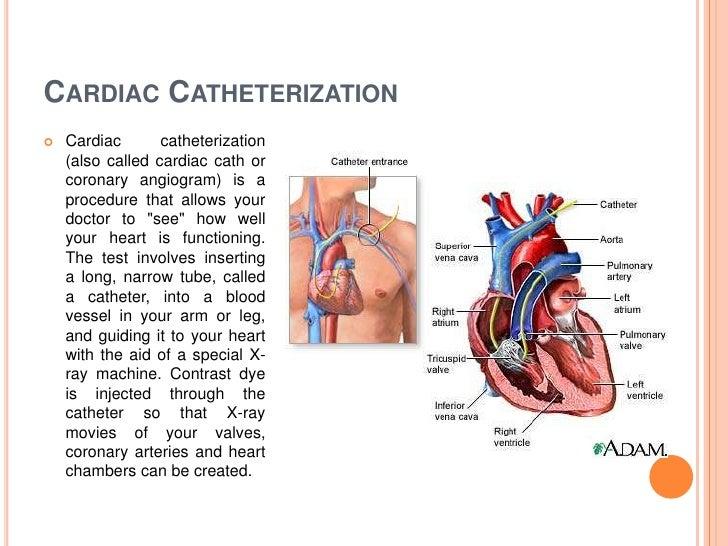 Diagnostic Procedures For Cardiovascular System