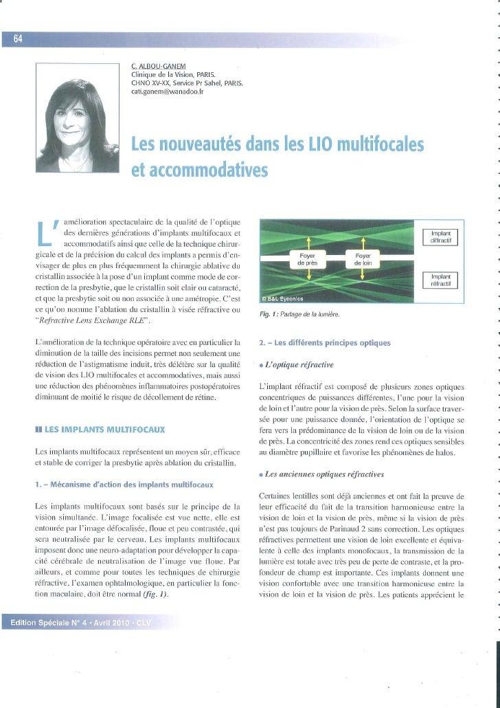 Nouveautés dans les LIO multifocales et accommodatives