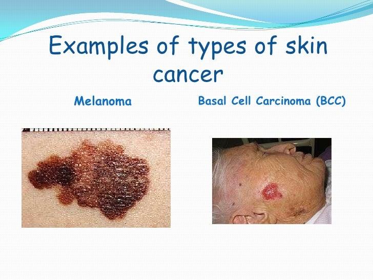 c:fakepathskin cancer