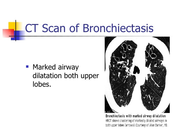 pathogenesis and diagnosis of bronchiectasis Bronchiectasis: introduction and common presenting symptoms bronchiectasis is a chronic medical condition characterized by damage to the airways resulting into widening and scarring of the airways common presenting symptoms of bronchiectasis include chronic attack of cough with sputum production along with respiratory distress, blood spitting.