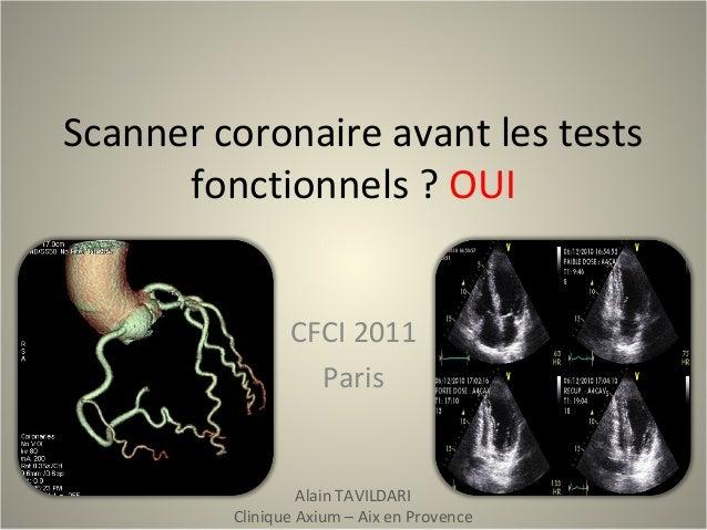 Scanner coronaire avant les tests fonctionnels ? OUI CFCI 2011 Paris Alain TAVILDARI Clinique Axium – Aix en Provence