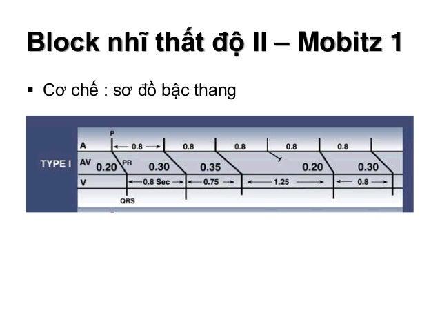 Block nhĩ thất độ II – Mobitz 1  Cơ chế : sơ đồ bậc thang