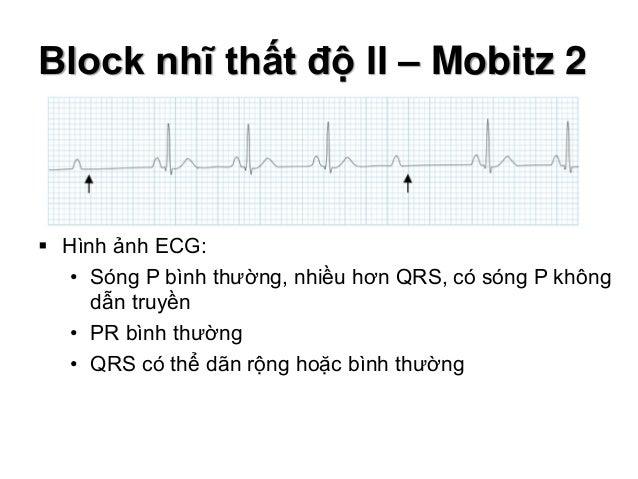 Block nhĩ thất độ II – Mobitz 2  Hình ảnh ECG: • Sóng P bình thường, nhiều hơn QRS, có sóng P không dẫn truyền • PR bình ...