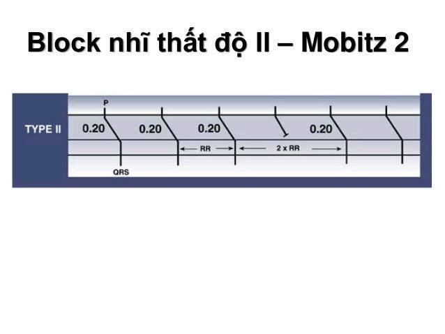 Block nhĩ thất độ II – Mobitz 2