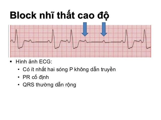 Block nhĩ thất cao độ  Hình ảnh ECG: • Có ít nhất hai sóng P không dẫn truyền • PR cố định • QRS thường dẫn rộng