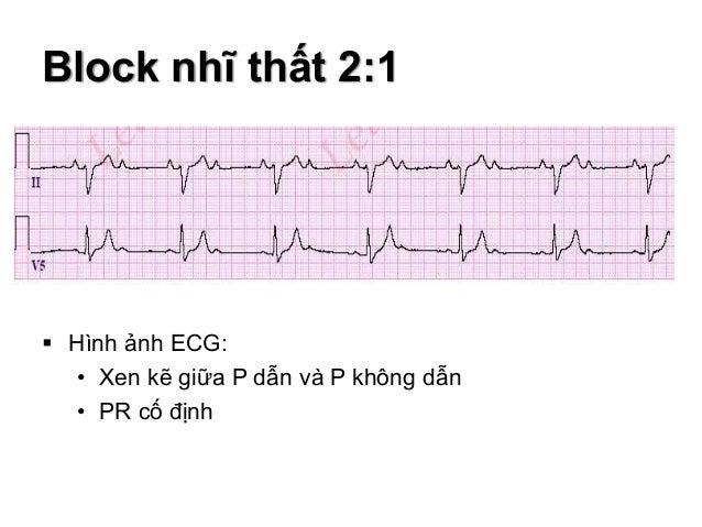 Block nhĩ thất 2:1  Hình ảnh ECG: • Xen kẽ giữa P dẫn và P không dẫn • PR cố định