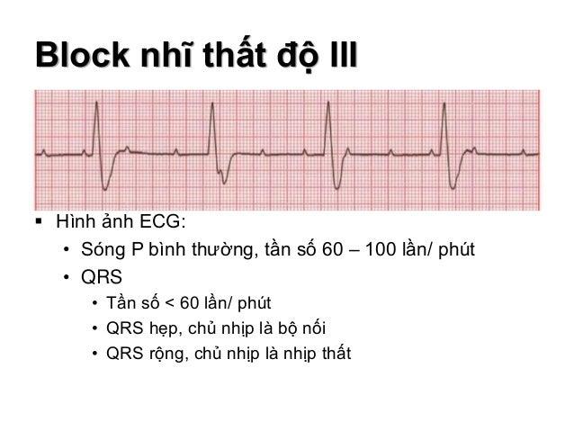 Block nhĩ thất độ III  Hình ảnh ECG: • Sóng P bình thường, tần số 60 – 100 lần/ phút • QRS • Tần số < 60 lần/ phút • QRS ...