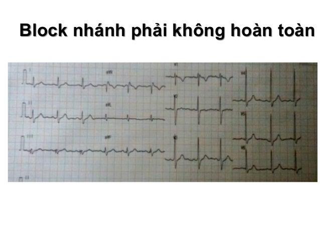 Block nhánh phải Tiêu chuẩn chẩn đoán block nhánh phải  QRS ≥ 0,12s ( < 0,12 : không hoàn toàn)  Chuyển đạo V1, V2: QRS ...
