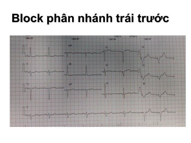 Block phân nhánh trái trước Cơ chế hình thành hình ảnh trên ECG