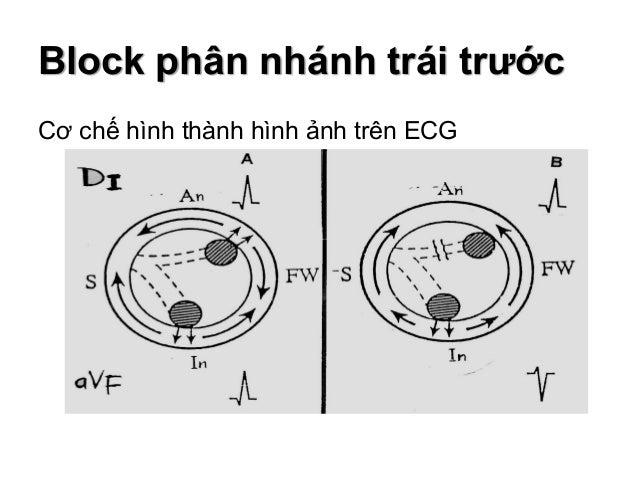 Block phân nhánh trái sau Tiêu chuẩn chẩn đoán  Trục điện tim lệch phải, không có những nguyên nhân khác gây trục lệch ph...