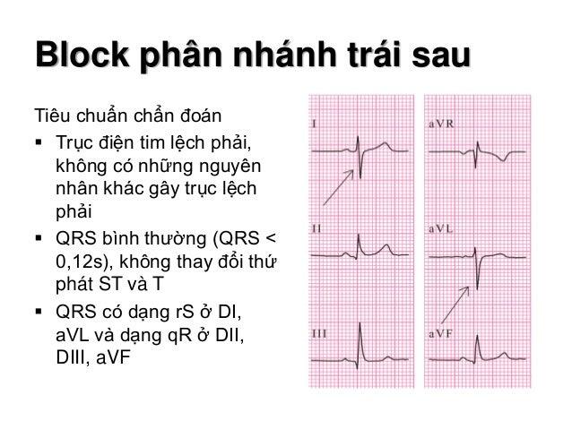 Cơ chế hình thành hình ảnh ECG Block phân nhánh trái sau