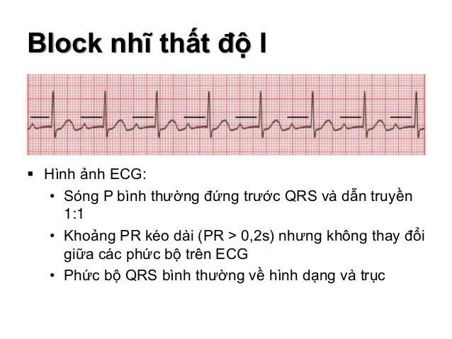 Block nhĩ thất độ I  Hình ảnh ECG: • Sóng P bình thường đứng trước QRS và dẫn truyền 1:1 • Khoảng PR kéo dài (PR > 0,2s) ...